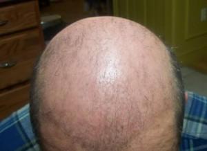 Yetersiz kökle seyrek olmuş saç ekimi