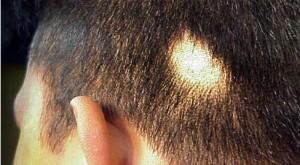 sarımsakla saç dökülmesi tedavisi nasıl yapılır