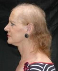 menopoza bağlı dökülmüş saç