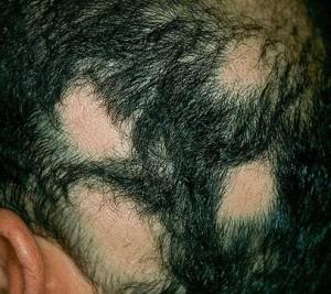 saçkıran çoğalırmı 300x267 Saçkıran neden olur