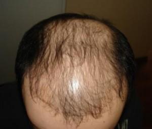 erkek tipi saç dökülmesi