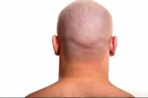 saçı kazıtmak saça faydalımı