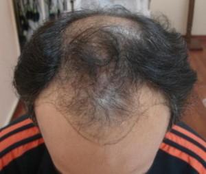 saç dökülmesi tedavisini hangi branş yapar