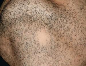 sakalda saçkıran