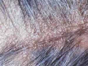 aşırı kepeklenmede en etkili şampuan