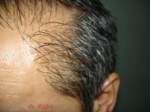 dik çıkan saç ekimi