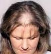 over kisti saç dökülmesi
