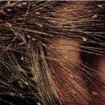 saç bitine kesin çözüm