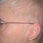 beyaz saç dökülürmü