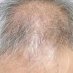 beyaz saç neden dökülür