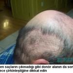 ekilen saç uzarmı